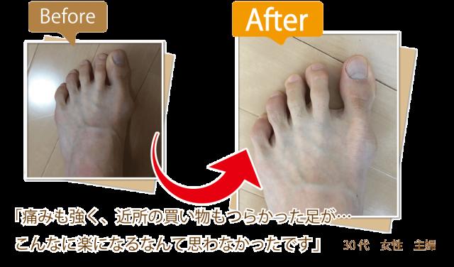 外反母趾、モートン病は早めに相談ください。