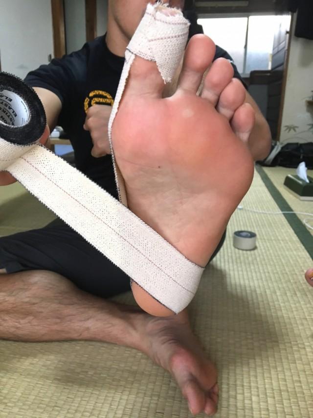外反母趾テーピング7踵骨の矯正3