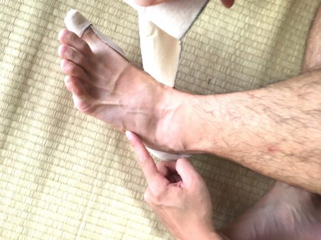 外反母趾テーピング7踵骨の矯正5