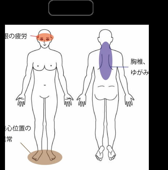 頭痛の検査所見