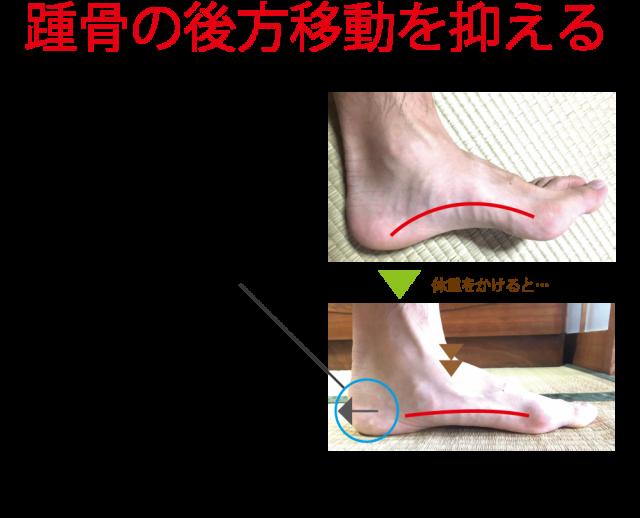 外反母趾のテーピングでは踵を抑える