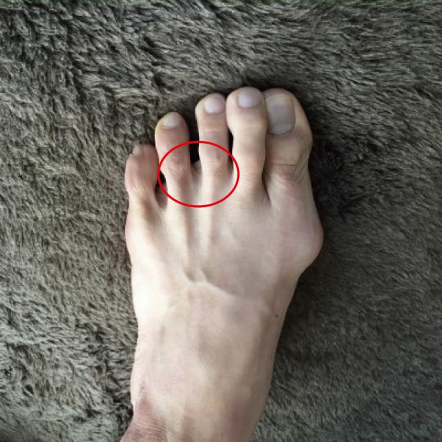 モートン病の発生位置