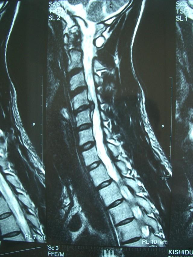 頚椎の写真