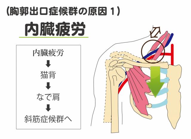 胸郭出口症候群の原因1 内臓疲労
