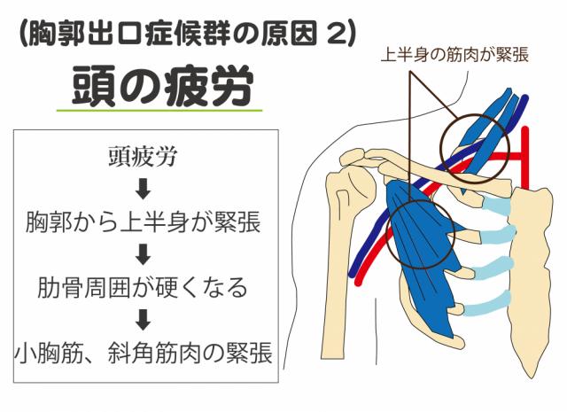 胸郭出口症候群の原因2 頭の疲労