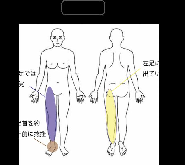妊娠中の腰痛検査の検査所見
