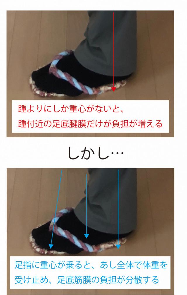 足裏全体で体重を受け止めて足底筋膜炎を改善