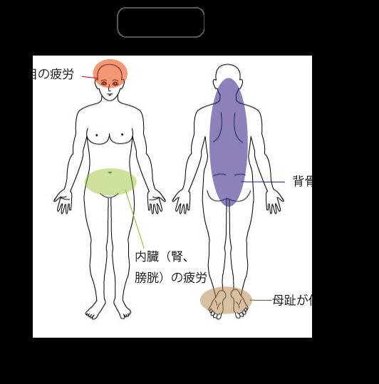 足底腱膜炎の検査所見